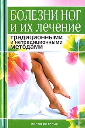 Болезни ног и их лечение традиционными и нетрадиционными методами
