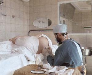 Роды и эпидуральная анестезия.