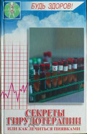 Секреты гирудотерапии